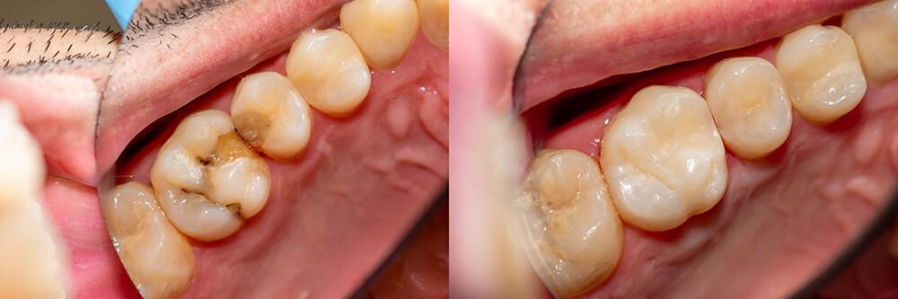 Amalgam-Alternativen Zahnarzt Dr. Hans Herrmann, Traunstein