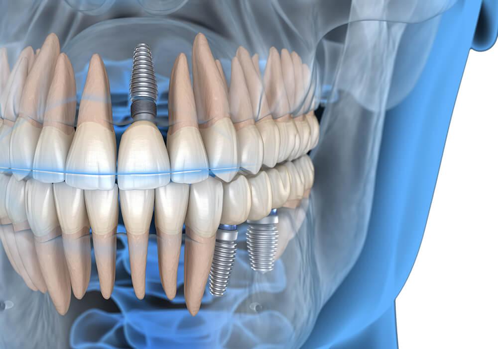 Implantologie Zahnarzt Dr. Hans Herrmann, Traunstein
