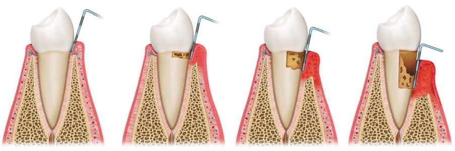 Parodontologie Zahnarzt Dr. Hans Herrmann, Traunstein